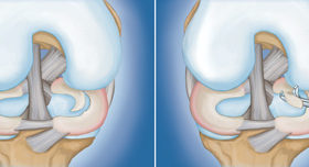 KNEE ARTHROSCOPY LIGAMENT